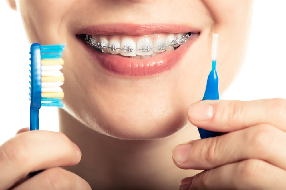 Oral-Hygiene-Braces